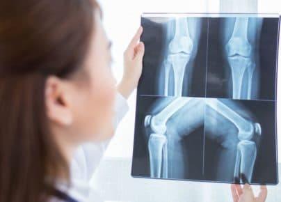 Bạn biết gì về loãng xương và cách điều trị?