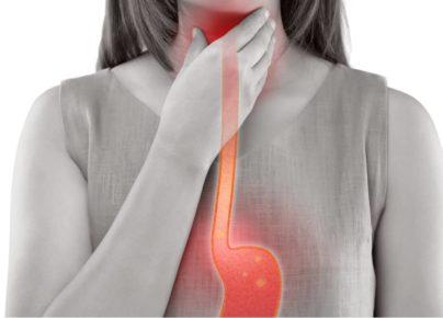 7 thực phẩm giúp bạn giảm thiểu triệu chứng của bệnh trào ngược dạ dày